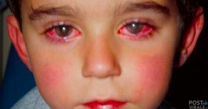 bambino-vista